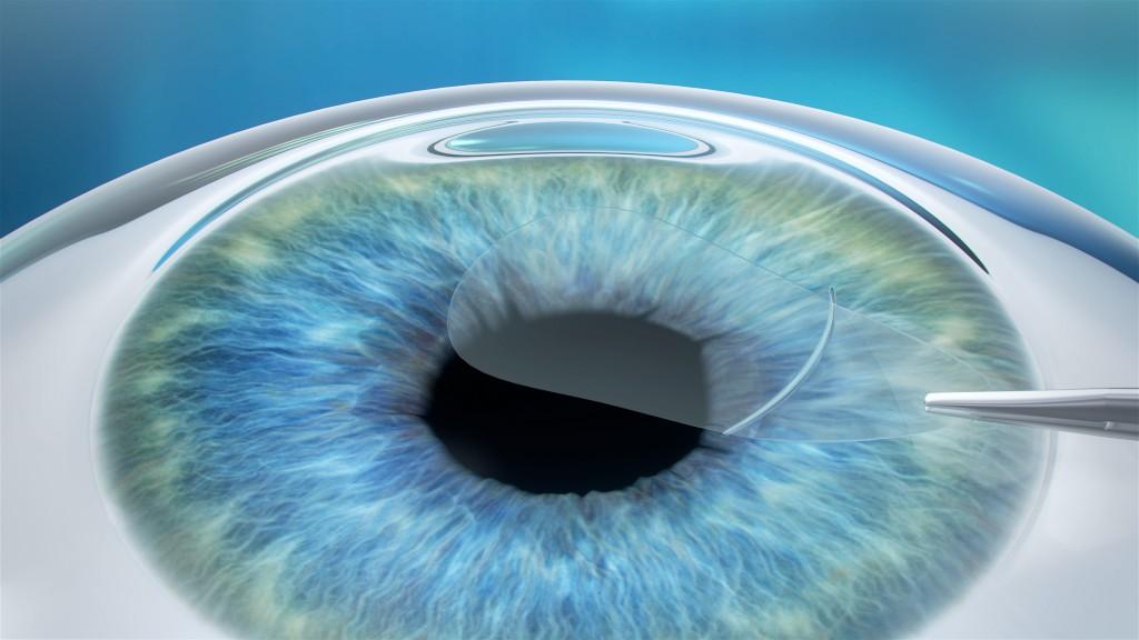 ReLEx Augenlaser